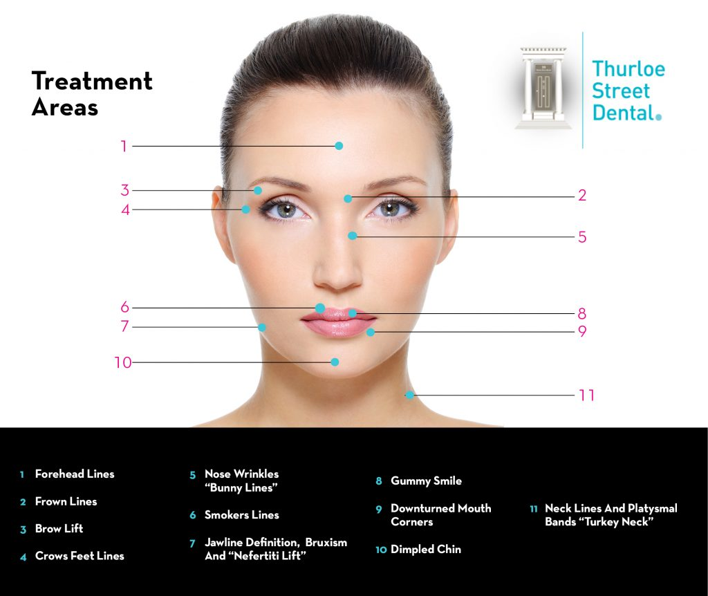 Botox/Anti-Wrinkle Injections South Kensington