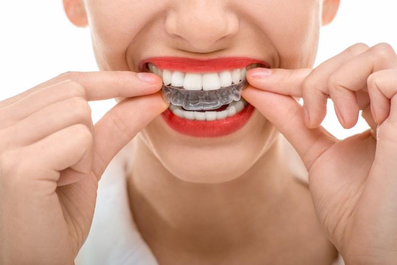 Dentist in South Kensington London | Thurloe Street Dental