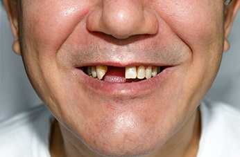 Dental Treatments South Kensington | Thurloe Street Dental